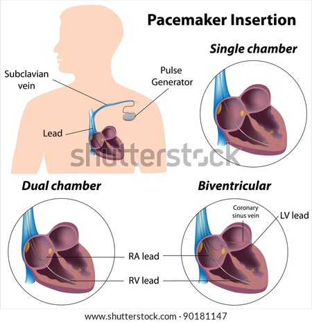 Pacemaker insertion surgery