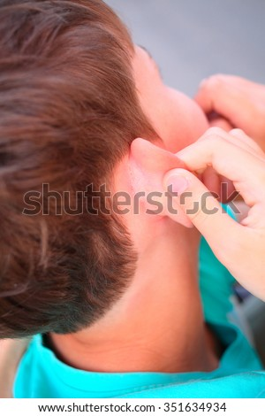 painful flaking and itching of skin behind ears of young boy
