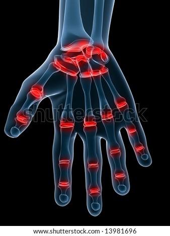 painful hand - stock photo
