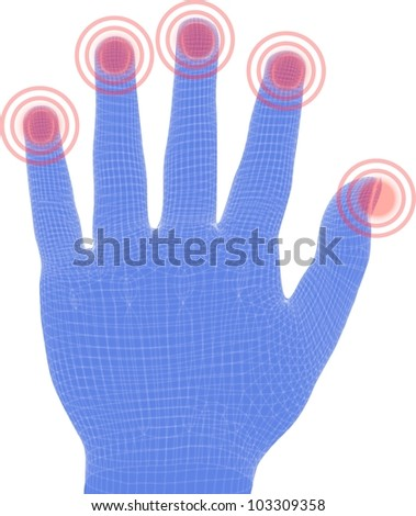 painful hand nails - stock photo