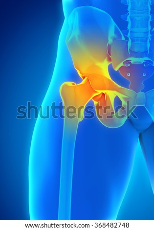 Painful Hip Joint - stock photo