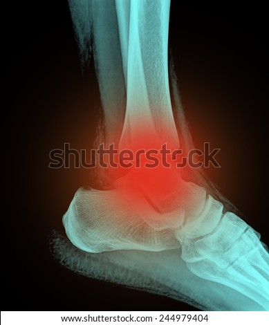 painful human right foot ankel xray picture (external side) - stock photo