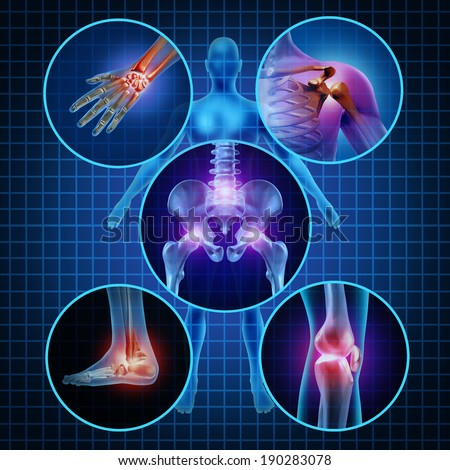 Painful joints human anatomy concept with the body as a group of circular panels of sore areas as an arthritis illness symbol for health care and medical symptoms due to aging sports and work injury. - stock photo