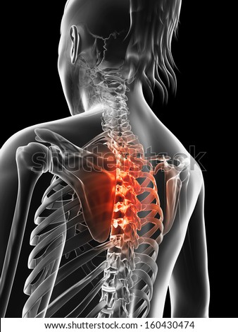 painful thoracic spine - stock photo