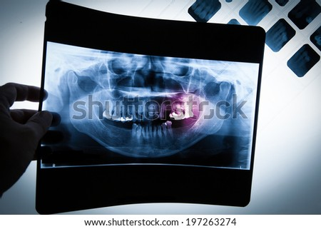 Panoramic dental dentist X-Ray with hands point in Computer screen and film  - stock photo