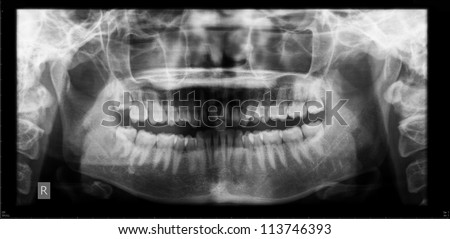 Panoramic dental X-Ray film