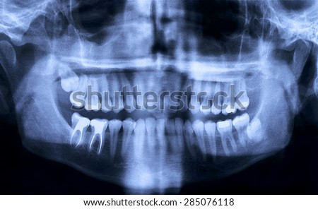 Panoramic dental X-Ray from a mouth with some tooth fillings, and a wisdom tooth crashed into a molar. - stock photo