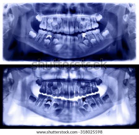 Panoramic dental x-ray of child of seven (7) years. Purple image roentgen teeth upper and lower girl skull. Two versions positive and negative shots of the digital image. - stock photo