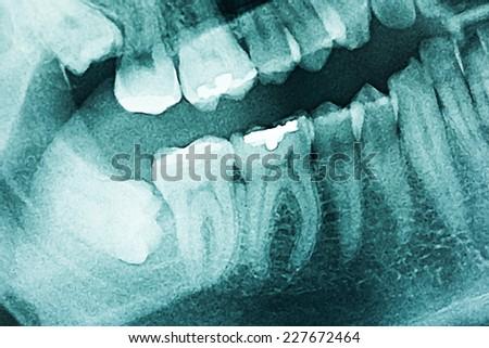 Panoramic Dental X-Ray Of Human Teeth - stock photo