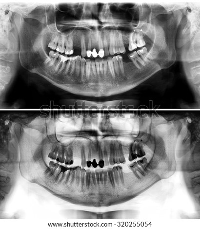 Panoramic dental x-ray of young man of thirty seven (37) years. Black and white image roentgen teeth upper and lower jaws of skull. Two versions positive and negative shots of the digital image