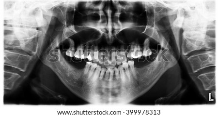 Panoramic dental x-ray scan human for teeth