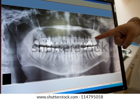 Panoramic dental X-Ray with hands point in Computer screen - stock photo