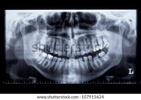 Panoramic radiograph of a human jaw - stock photo