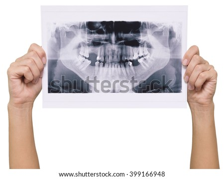 panoramic x-ray skan in human hands isolated on white background
