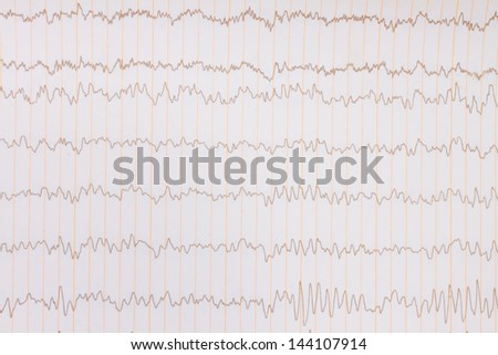 paper ECG graph with heartbeat pulse background - stock photo