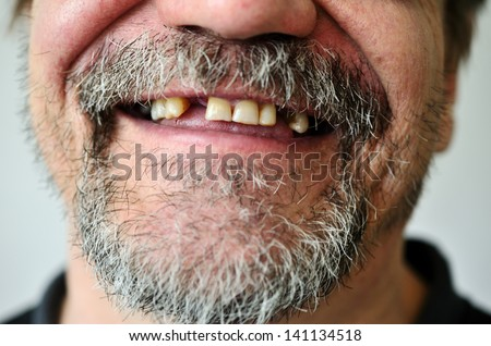 part of a man's face with a smiling toothless - stock photo