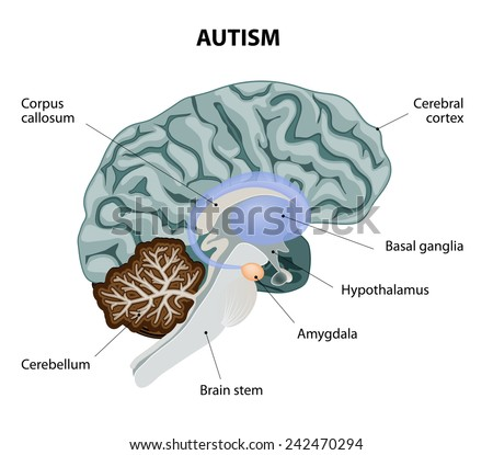 Parts of the brain affected by autism. Medical illustration - stock photo