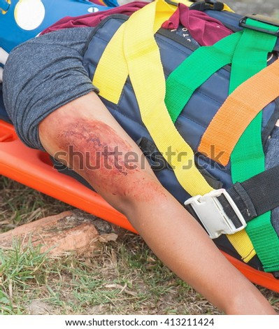 patient Injury upper arm, Wait for the physician on stretcher assist a patient in emergency rescue, situations, a stretcher for people with injuries. (select focus Wound to the arm)   - stock photo