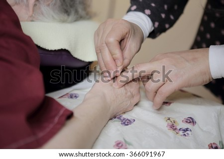 Patient receiving acupuncture needles.