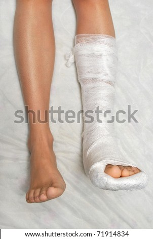 Broken Leg Stock Images Royalty Free Images Amp Vectors