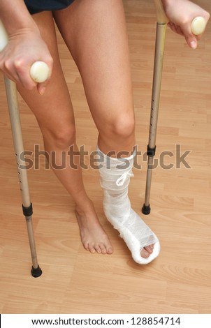 Patient with broken leg in cast and bandage - stock photo