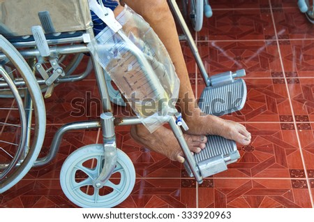Patient with urine bag on wheel chair.