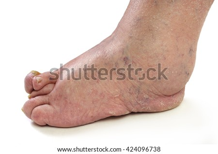 Patients feet of an old man.Inflammatory process. Gout.Erysipelas.Nail fungus. The disease of the joints and tissues caused by metabolic disorders in the body. - stock photo