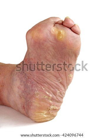 Patients feet of an old man.Inflammatory process.Gout.Erysipelas.Nail fungus.