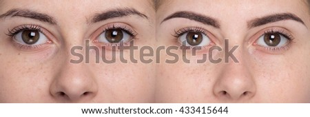 Eyebrow Shaping Stock Images, Royalty-Free Images & Vectors ...
