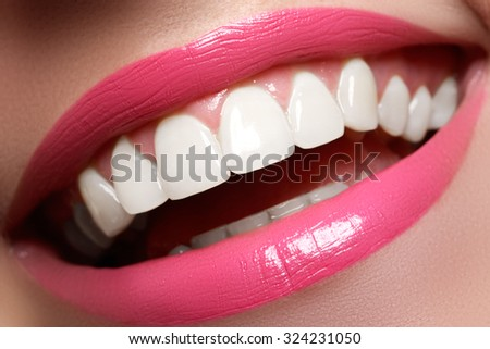 Perfect smile before and after bleaching. Dental care and whitening teeth. Smile with white healthy teeth. Healthy woman teeth and smile and sexy full pink lips - stock photo