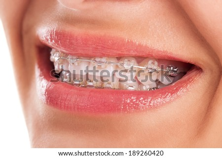 Perfect teeth with braces isolated