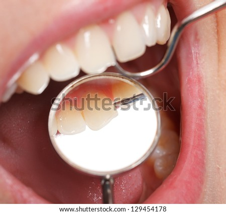 Periodic comprehensive dental examination to have a healthy mouth and teeth - stock photo