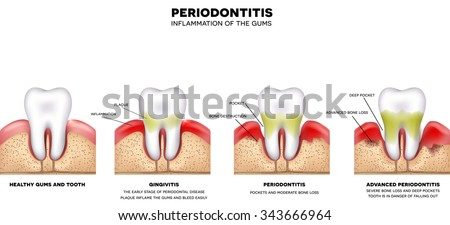 Periodontitis and inflammation of the gums, detailed illustration