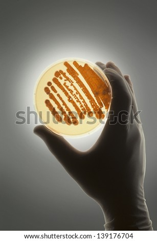 Petrie dish with bacteria in growth medium used for biological research and discovery - stock photo