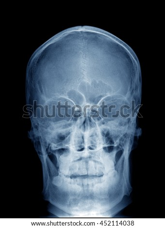 photo of front view x-ray picture of human skull in blue colors