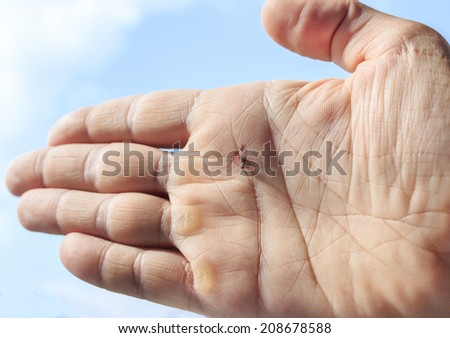 Photo of palm of the hand with mosquito squashed after drinking blood - stock photo