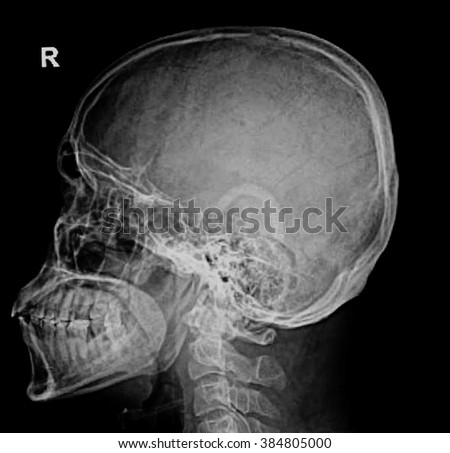 photo of side x-ray picture of human skull