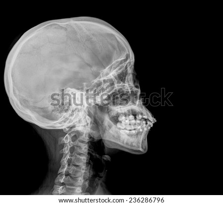 Photo Side Xray Pictur...