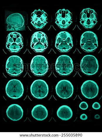Photo of the CT and MRI of the skull - stock photo