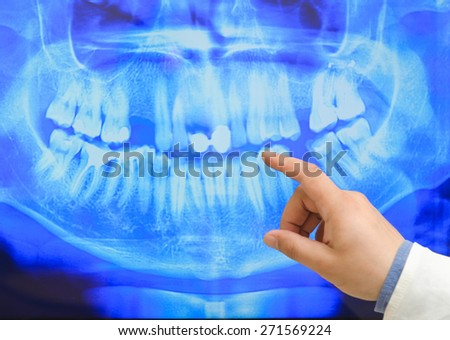 Picture of male doctor or dentist looking at x-ray. - stock photo