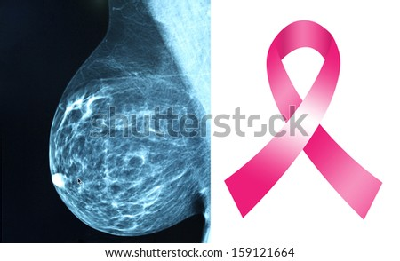 Pink ribbon for breast cancer awareness with mammogram image background - stock photo