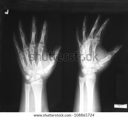 Plain film antero-posterior (AP), and oblique views of left hand: Demonstrated fracture of first metacarpal bone with displacement. - stock photo