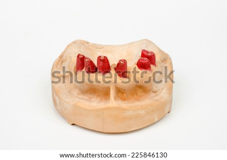 plaster cast with plastic stumps - stock photo