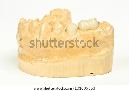 plaster model with finished ceramic crown and basic cap - stock photo
