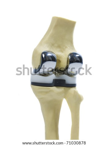 Knee Replacement Stock Images Royalty Free Images