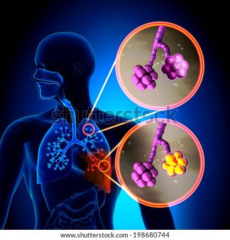 Pneumonia - Normal alveoli vs Pneumonia - stock photo