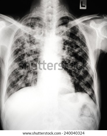 Pneumonia patients x-ray film.