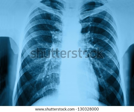 pneumonia test scanning, modern x-rays radiography details - stock photo