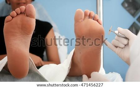 thủ tục làm Podiatrist chăm sóc bàn chân và bấm huyệt