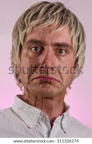 Portrait of a blonde haired man with very dry skin - stock photo